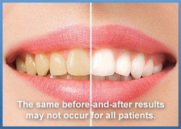 Teeth Whitening Dentist Fullerton CA